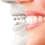 枚方・寝屋川の歯科医院【香里園レジデンス歯科】の矯正歯科