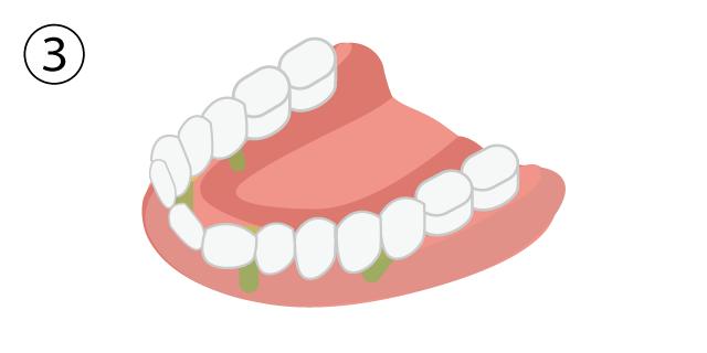 香里園レジデンス歯科のインプラント治療「ALL-on-4」の説明画像