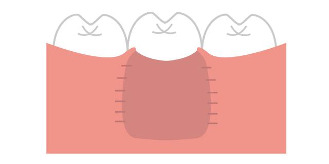 香里園レジデンス歯科の歯周病治療「GBR」の説明画像