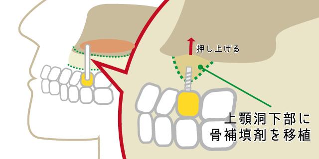 香里園レジデンス歯科のインプラント治療「ソケットリフト」の説明画像