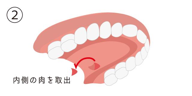 香里園レジデンス歯科の歯周病治療「CTG」の説明画像
