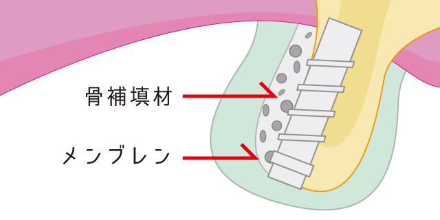 香里園レジデンス歯科のインプラント治療「GBR」の説明画像
