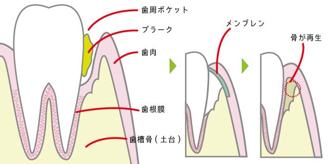 香里園レジデンス歯科の歯周病治療「GTR」の説明画像