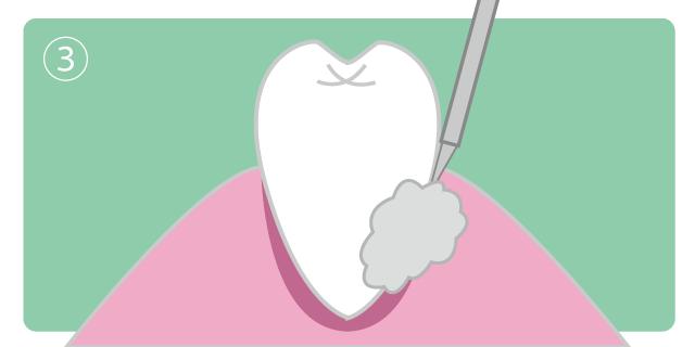 香里園レジデンス歯科の歯周病治療「エムドゲイン」の説明画像