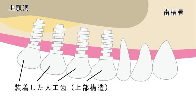 香里園レジデンス歯科のインプラント治療「サイナスリフト」の説明画像